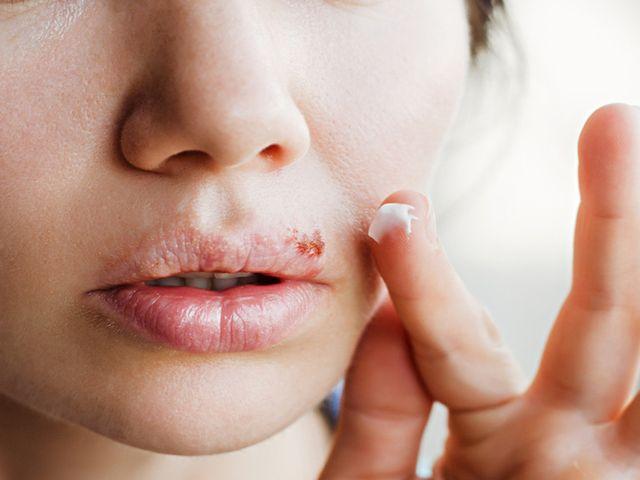 Apa Herpes Bisa Sembuh dengan Sendirinya? | WeCare.id