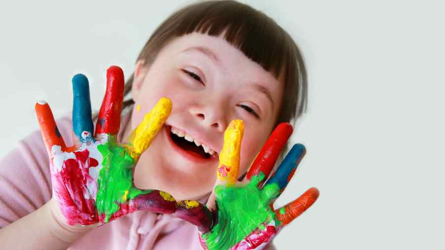 Fakta Dan Mitos Down Syndrome | WeCare.id