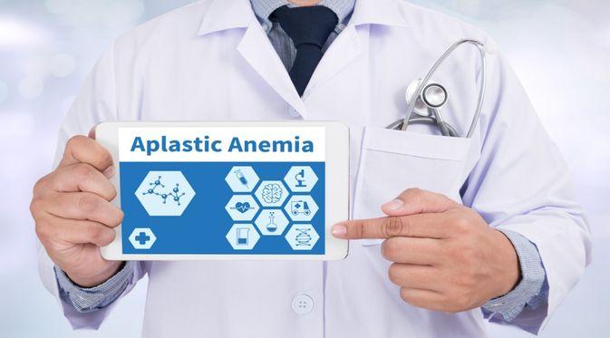 Mengenal Penyakit Anemia Aplastik dan Pencegahannya