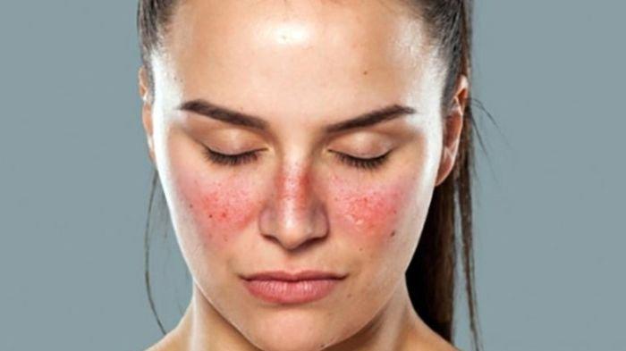 5 Gejala Penyakit Autoimun Lupus yang Harus Diwaspadai | WeCare.id