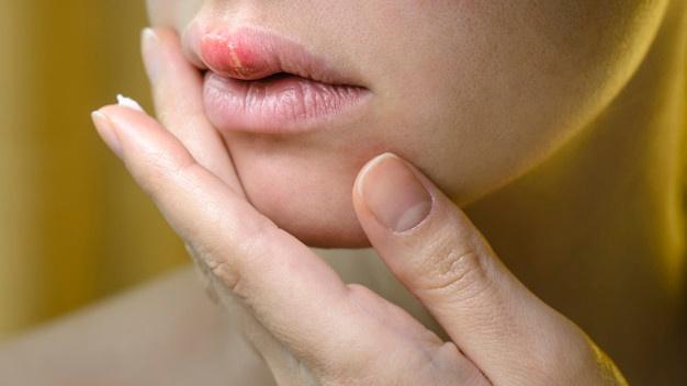 Herpes: Pengertian, Asal Usul, Gejala, Penyebab, dan Cara Mengobatinya | WeCare.id