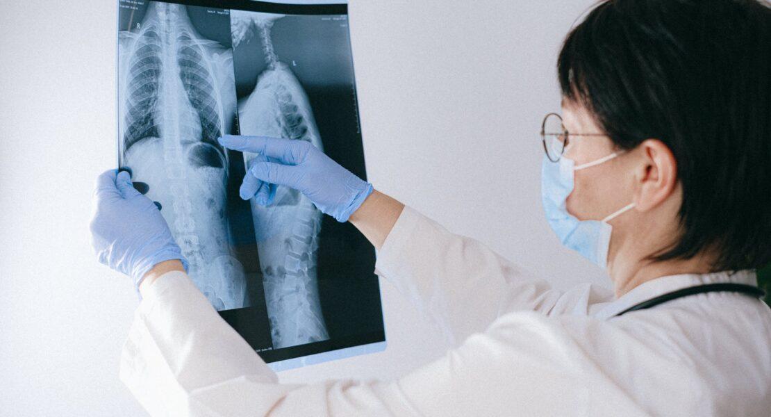 Kenali Paru-Paru Basah atau Pneumonia | WeCare.id