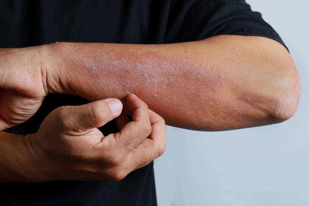 Dermatitis Atopik: Pahami Gejala dan Cara Mengatasinya | WeCare.id